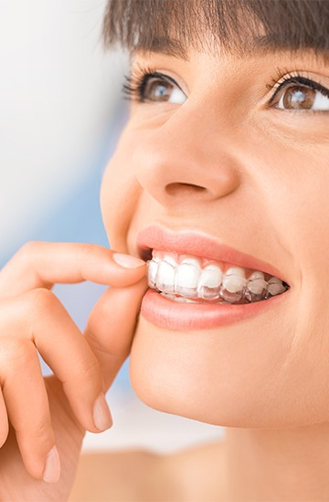 Woman placing clear braces aligner tray