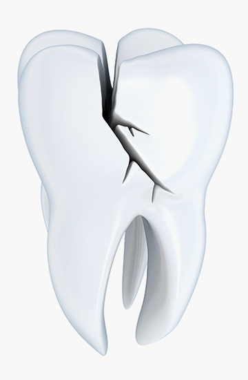 Animated tooth with a cavity