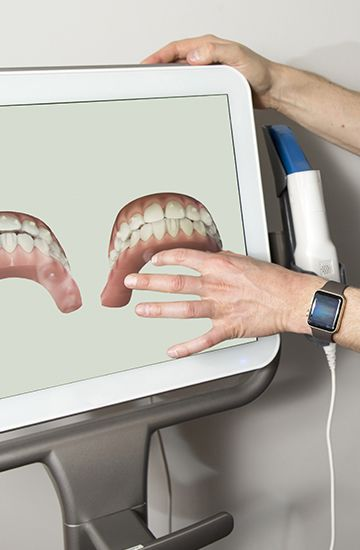 Intraoral images of smiles on chairside computer