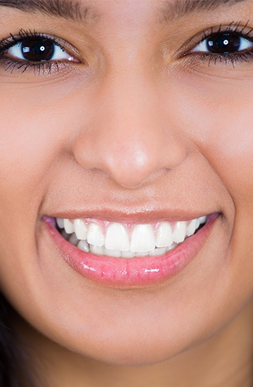 Woman's smile after zoom teeth whitening